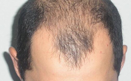 Укрепление волос от выпадения народными средствами